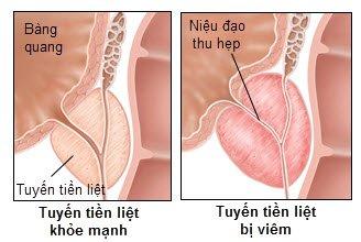 Điều trị tiền liệt tuyến theo phương pháp mới: hiệu quả, ít xâm lấn