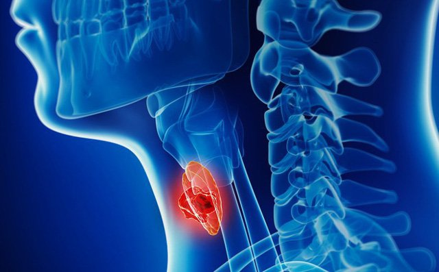 Gói Tầm soát và phát hiện sớm ung thư vòm họng, hạ họng, thanh quản 1