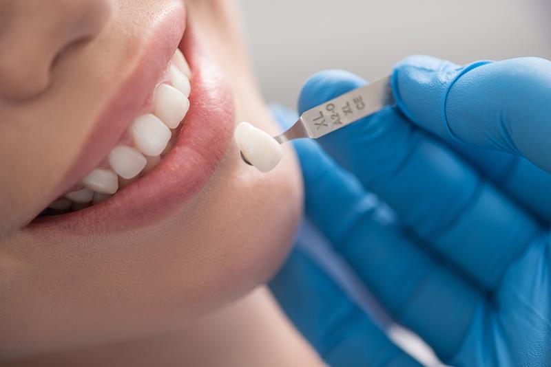 Gói bọc răng sứ thẩm mỹ 1