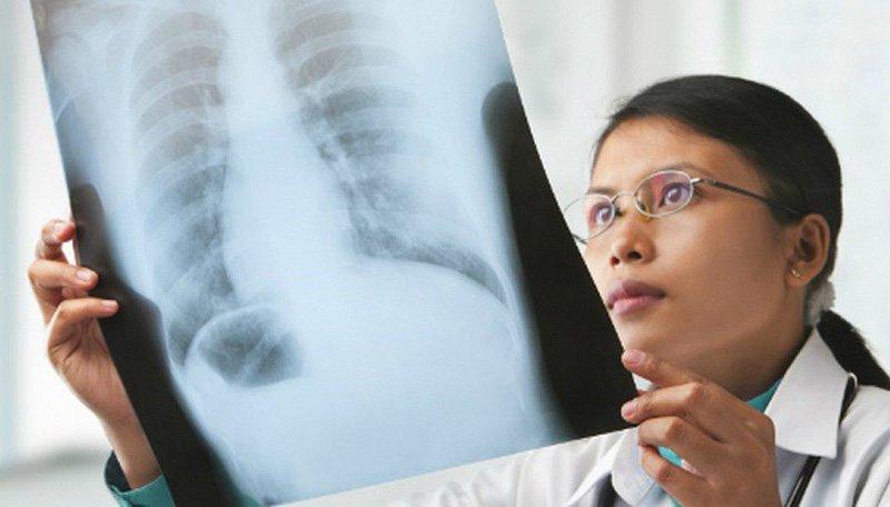 Ung thư phổi có thể được chẩn đoán ở giai đoạn sớm không?