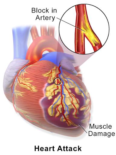 Nhồi máu cơ tim là gì – Tìm hiểu cùng bác sĩ