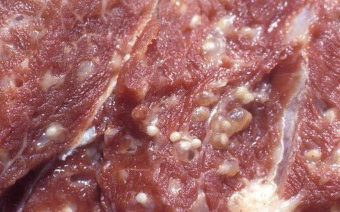 Cách nhận biết và phòng tránh bệnh sán lợn theo khuyến cáo của Bộ Y tế