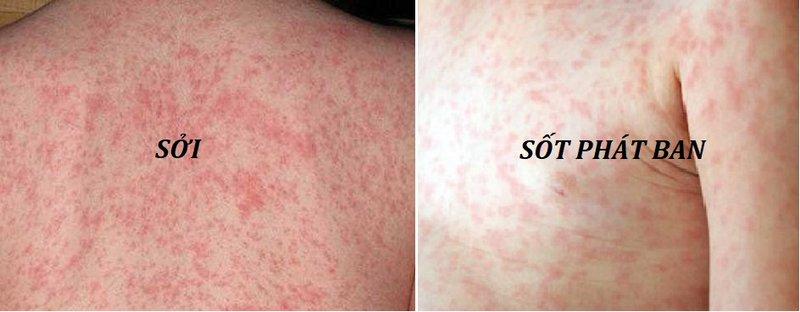 Phân biệt các dấu hiệu của bệnh sốt phát ban với bệnh sởi