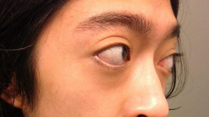lồi mắt