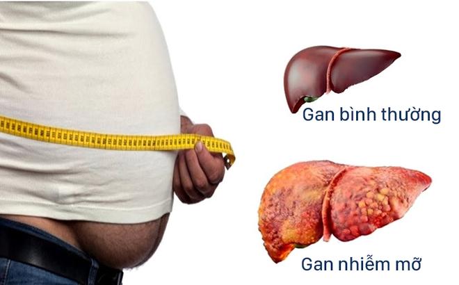 Nguyên nhân nào dẫn đến gan nhiễm mỡ?