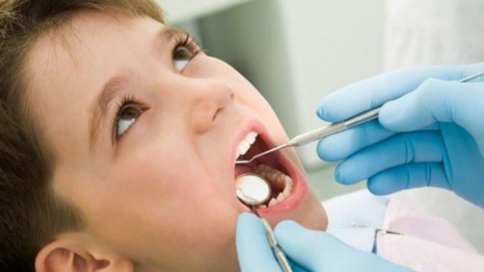Cha mẹ cần làm gì với bệnh viêm lợi ở trẻ?