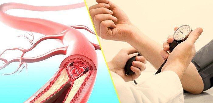 Tăng huyết áp là gì
