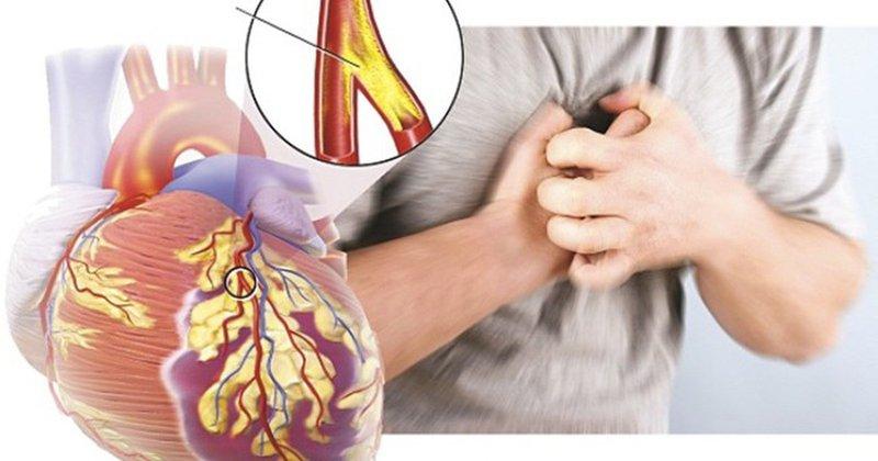 mạch vành tim