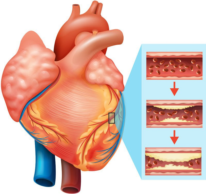 Bệnh mạch vành