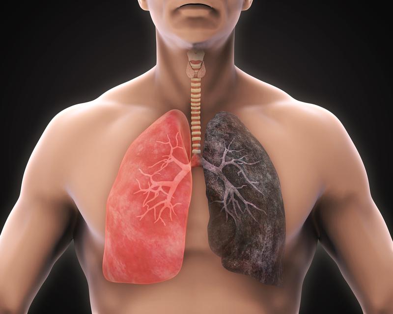 Sốt nhẹ, ho han 2 tuần là dấu hiệu của bệnh ung thư phổi đúng không?