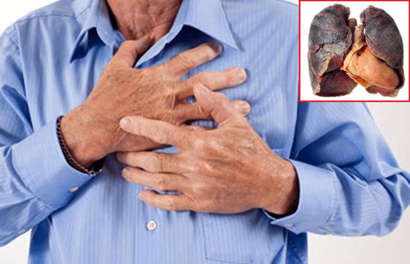 Tìm hiểu triệu chứng ung thư phổi điển hình