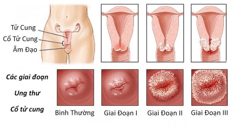 Nguyên nhân gây ra bệnh ung thư cổ tử cung là gì?