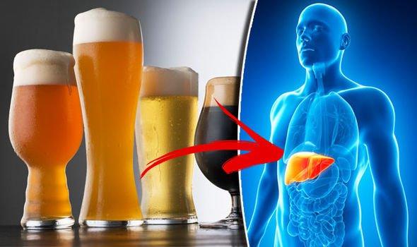 Rượu bia gây xơ gan