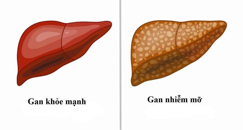 gan nhiễm mỡ