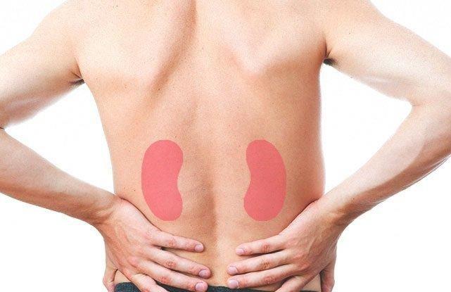 Đau lưng là dấu hiệu của bệnh sỏi thận