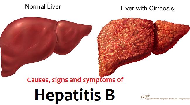 Bệnh viêm gan B lây qua đường nào?