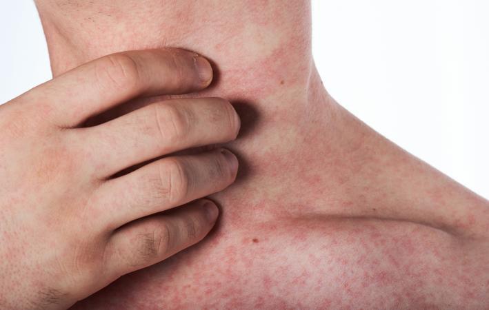 Kết quả hình ảnh cho sốt xuất huyết