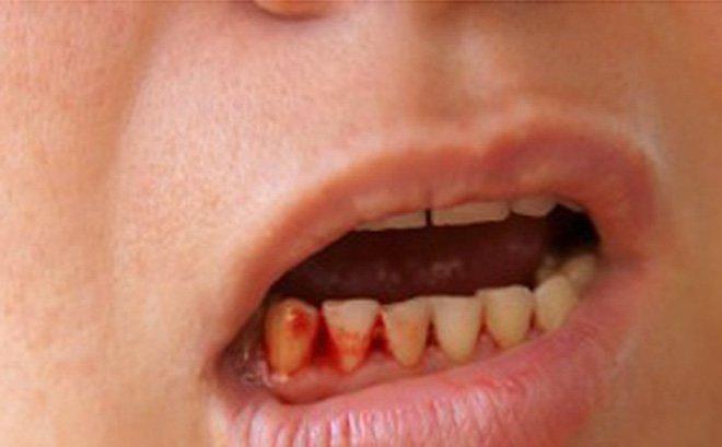 Chảy máu chân răng do sốt xuất huyết