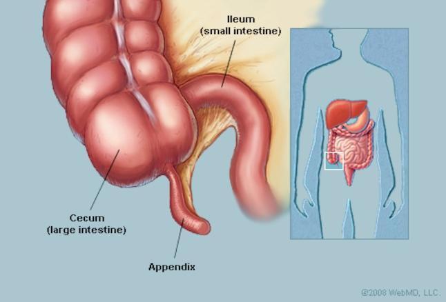 Cẩm nang những điều cần biết về viêm ruột thừa cấp