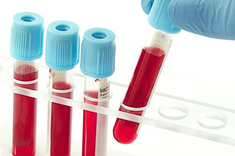 Xét nghiệm TSH và FT4 để phát hiện bệnh lý tuyến giáp