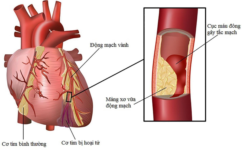 Nhồi máu cơ tim ở người trẻ tuổi ngày càng tăng cao