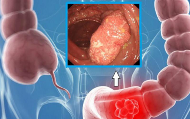 Tổng quan về bệnh polyp đại trực tràng