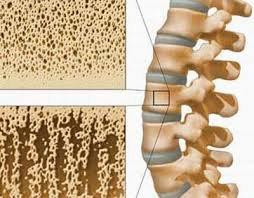 Thiếu canxi - nguyên nhân hàng đầu gây loãng xương và các bệnh cơ xương khớp