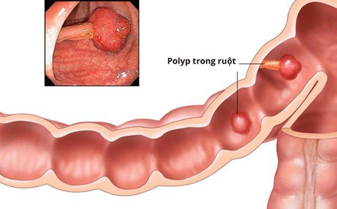 Polyp đại - trực tràng ở trẻ em