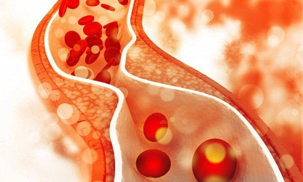 LDL cholesterol trong máu
