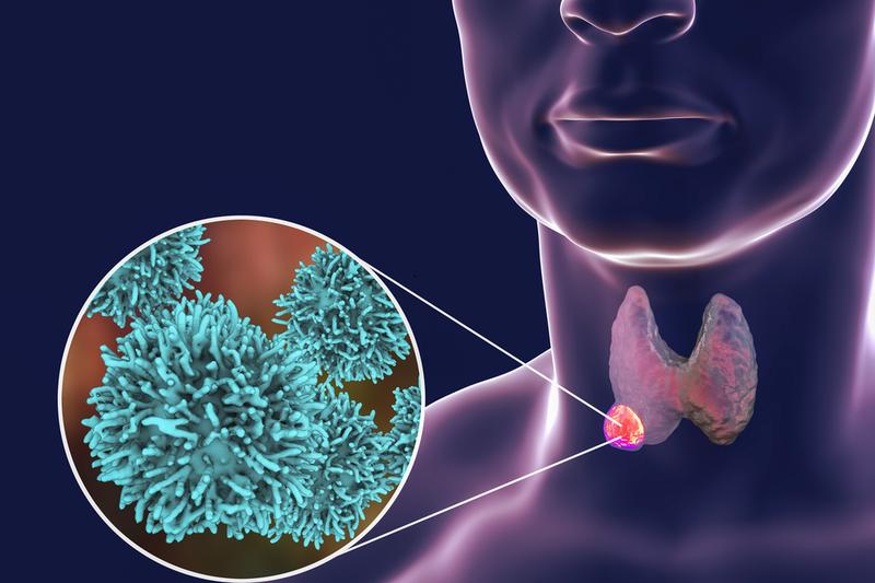 Hormone TSH  và ý nghĩa  trong chẩn đoán sàng lọc các bệnh lý tuyến giáp cũng như theo dõi hiệu quả điều trị