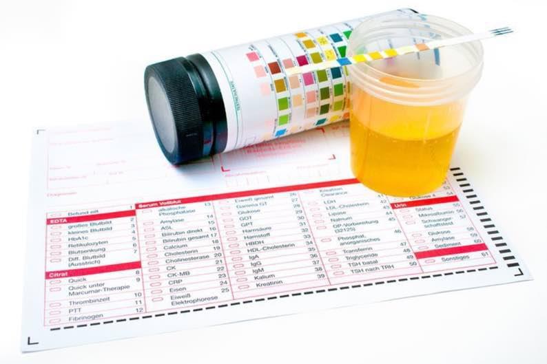 Xét nghiệm nước tiểu rất có ý nghĩa trong gói khám sức khỏe tổng quát.