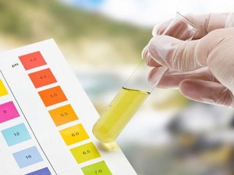 Ý nghĩa xét nghiệm nước tiểu