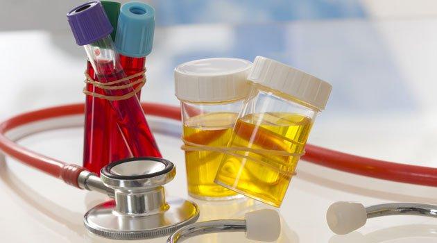 Xét nghiệm máu và xét nghiệm nước tiểu