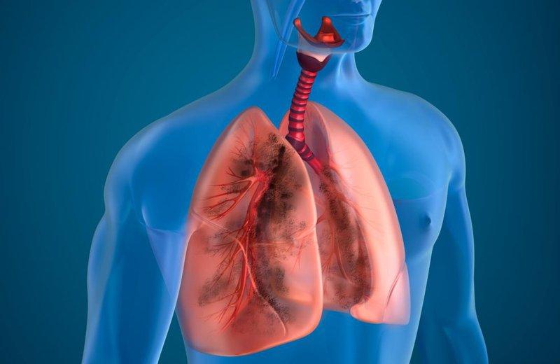 Những thăm dò quan trọng giúp phát hiện và hỗ trợ điều trị bệnh phổi tắc nghẽn mãn tính