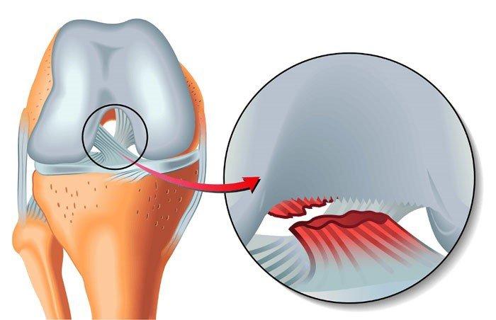 Đứt dây chằng chéo trước là một trong những chấn thương đầu gối thường gặp