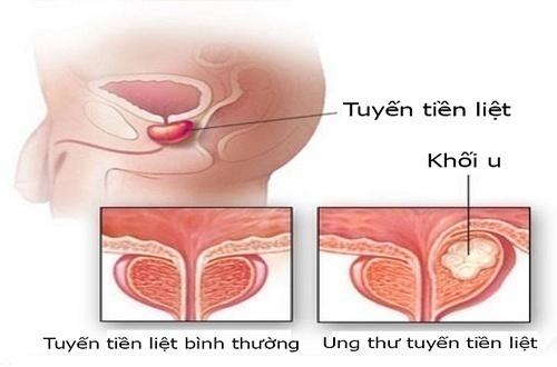 ung thư tiền liệt tuyến