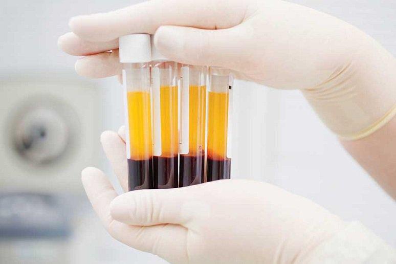 Xét nghiệm định lượng nồng độ Aldosteron trong máu | Vinmec