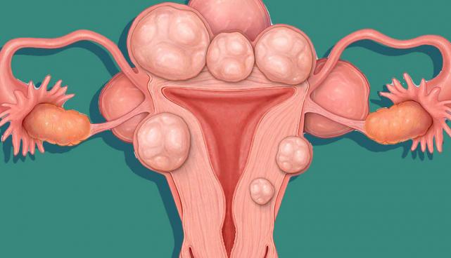mổ bóc tách u xơ tử cung