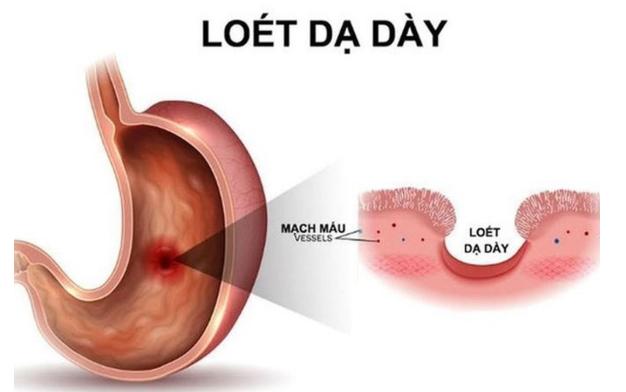 Image result for Loét dạ dày