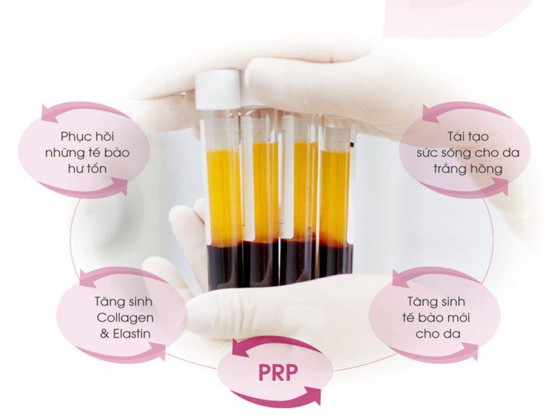 Phương pháp PRP