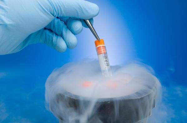 Lưu trữ tinh trùng