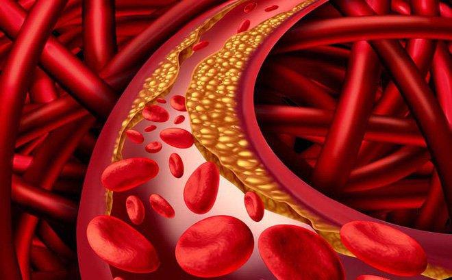 Mỡ máu bao nhiêu là bình thường, bao nhiêu là cao?