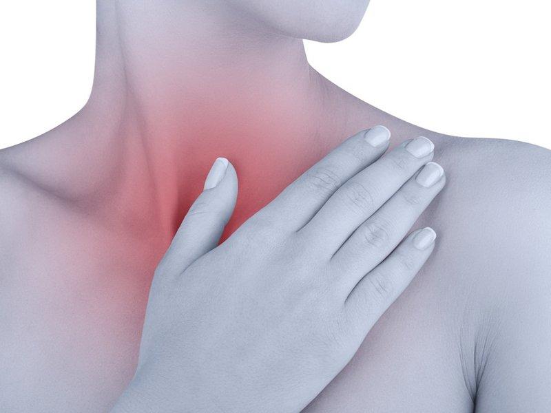 viêm họng do trào ngược dạ dày