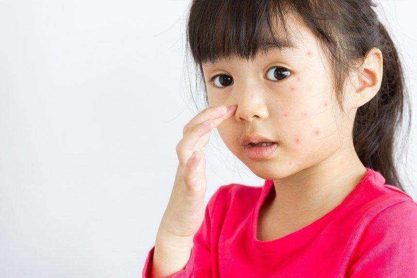 sốt xuất huyết ở trẻ em