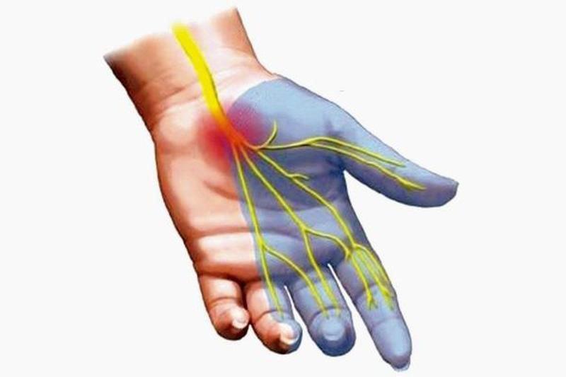 Hội chứng ống cổ tay gây ra chèn ép dây thần kinh giữa
