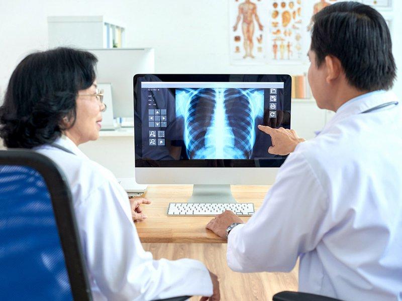 chụp X quang ung thư phổi