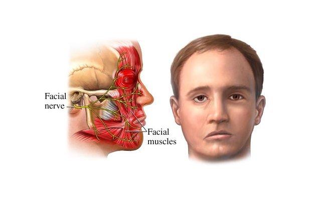 Dây thần kinh số 7 liệt mặt