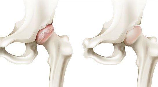 Các biện pháp điều trị hoại tử (tiêu) chỏm xương đùi nặng | Vinmec