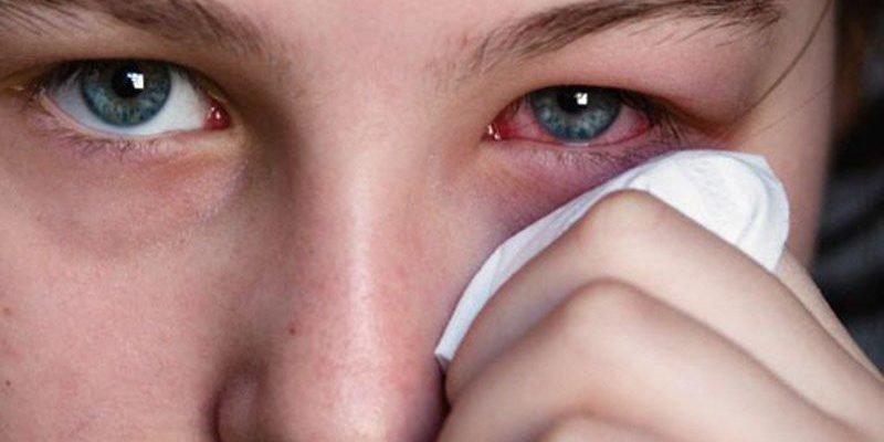 Viêm kết mạc mắt