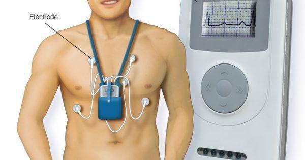 Holter điện tâm đồ là gì và có ý nghĩa thế nào trong chẩn đoán rối loạn nhịp tim?